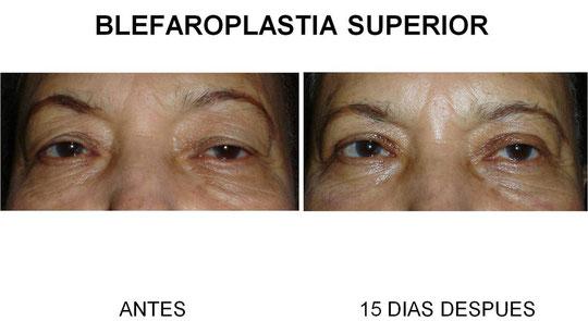 En la foto 1 la paciente debe levantar las cejas, para elevar el párpado, e inclinar la cabeza hacia atrás. En la foto 2, la paciente abre naturalmente sus ojos, disfrutando de un campo visual normal.