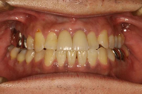 少し腫れて下がってしまった歯茎