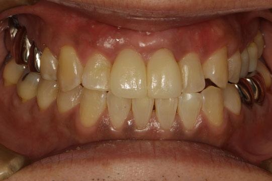 歯茎の再生治療で歯茎の回復後にセラミック治療