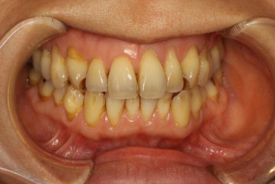 きれいな歯ぐきの再生治療 治療前