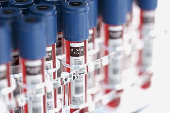 Kasse zahlt Bluttest zur Rhesusfaktor-Bestimmung des Babys