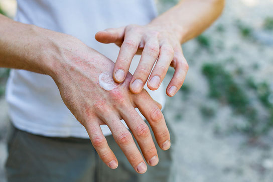 Laut DGUV jährlich über 18000 Berufserkrankungen pro Jahr