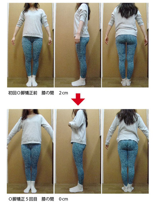 石川県金沢市・野々市市・白山市 美脚、下半身太り、お尻が大きい。O脚矯正モニターは「ほしみぐさ」