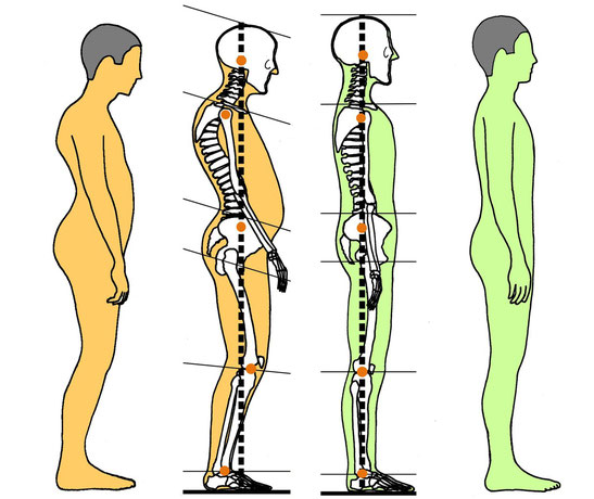 Feldenkrais Dr. Karnahl, Wirbelsäule aufrichten, Beweglichkeit steigern, Schmerzen reduzieren, Halle Saale, Plauen