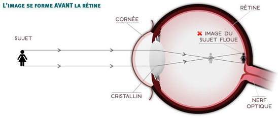 Formation d'une image en avant de la rétine en cas de myopie. Source : sergent optique.com
