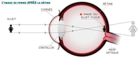 Formation d'une image après la rétine en cas d'hypermétropie. Source : sergent optique.com