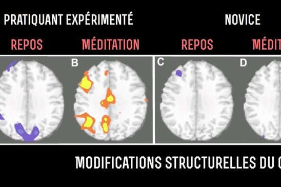 cerveau meditation avant apres
