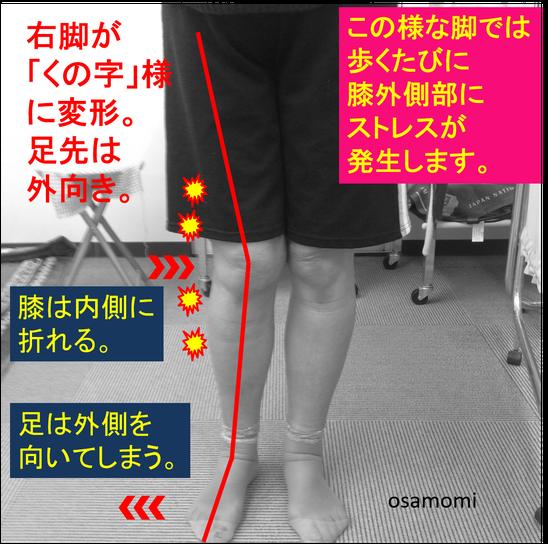オサモミ整体院 膝痛 股関節痛 昭島
