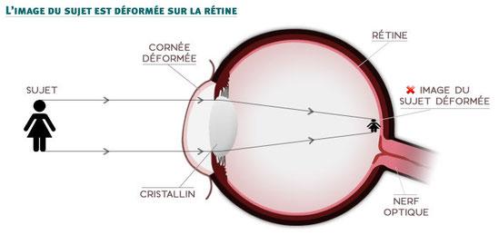 Formation d'une image en différents points en arrière et en avant de la rétine.