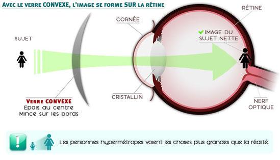 Correction de l'hypermétropie par une lentille convergente (verre convexe).