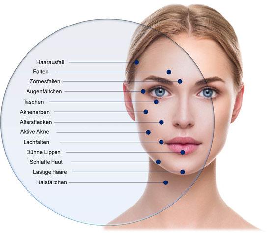 microneedling, kosmetik, wellness, gesichtsbehandlung, kosmetik, microneedling euskirchen, kosmetik euskirchen