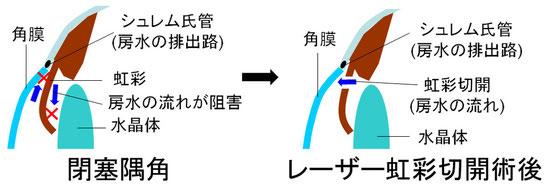 尼崎 眼科 緑内障 日帰り白内障手術 急性緑内障 緑内障発作 レーザー虹彩切開術 LI