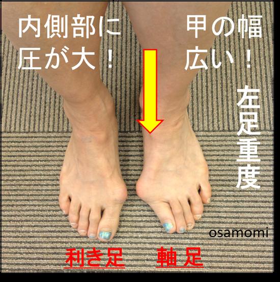 オサモミ整体院  外反母趾の痛み 昭島