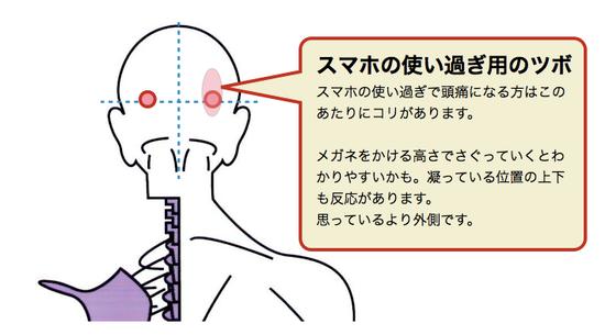 スマホの使い過ぎによる眼精疲労頭痛に使うツボ