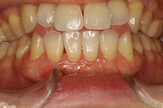 歯茎の再生 1ヶ月