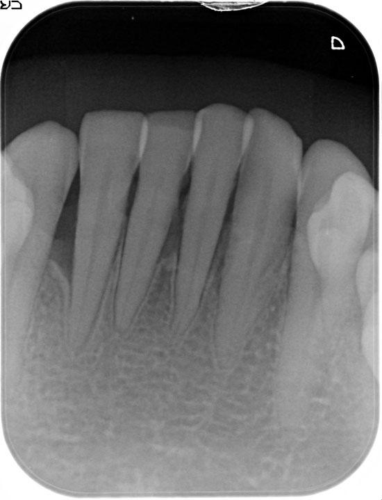 歯周病が進行して骨が吸収してしまっている状態