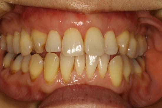 上の前歯のきれいな見た目の歯ぐきの再生治療
