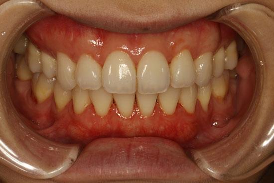 歯ぐきの再生治療
