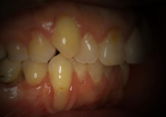 歯茎下がる