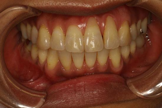 矯正治療後に歯茎が下がってしまったケース 治療前