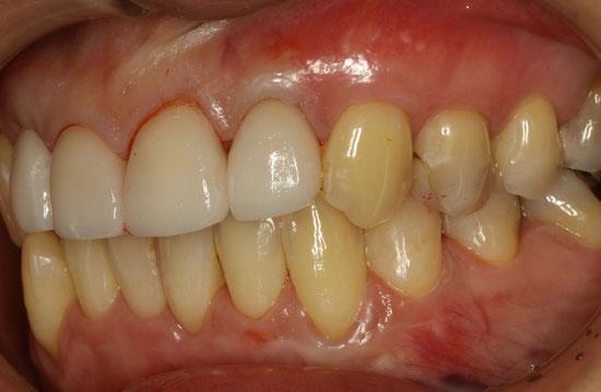 前歯の歯茎の再生