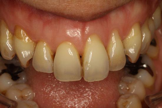 きれいな歯ぐきの再生治療 治療前 拡大