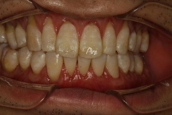 全体的に歯茎が下がってしまっている場合