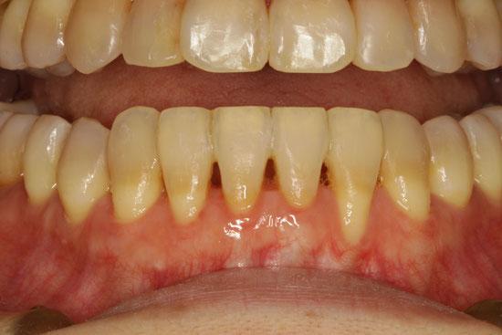 成人矯正をされる方に注意の歯ぐきの退縮 - 歯茎の再生で ...