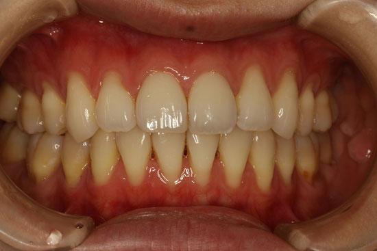 歯ぐきの再生で歯周病の予防