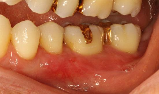 奥歯の歯茎再生
