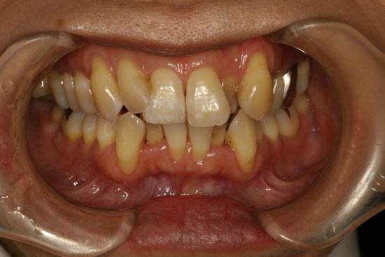 1回に7本の歯の歯ぐきの再生治療を行ったケース