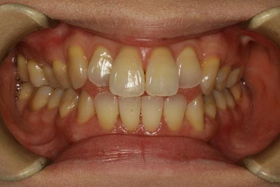 変色歯の歯茎の再生治療