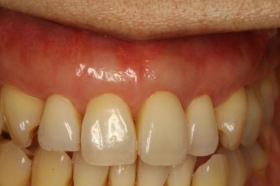 きれいな歯ぐきの再生治療 治療後 拡大
