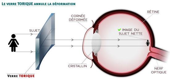 Correction de l'astigmatisme avec une lentille torique (verre torique).