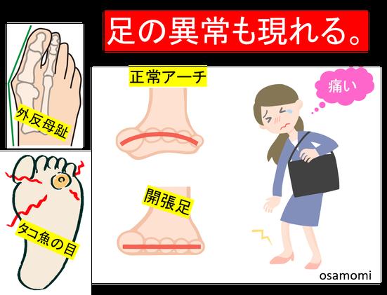 外反母趾・タコ魚の目・開張足のケアは、昭島市のオサモミ整体院。拝島駅から無料送迎サービス。