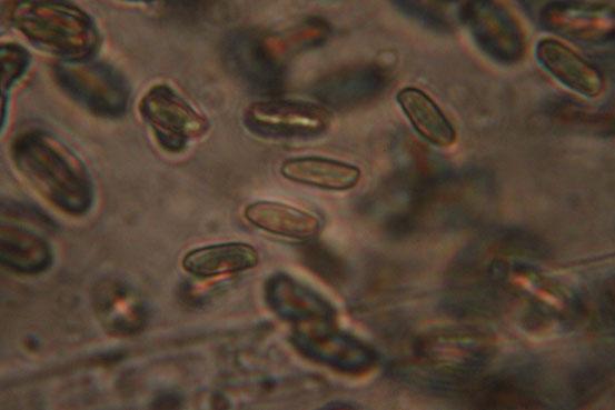 オオミノクロアワタケ胞子