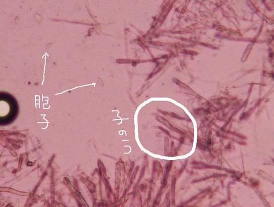 ヒメロクショウグサレキン 胞子 子嚢
