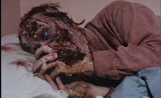 Moi Zombie, Chronique de La Douleur de Andrew Parkinson