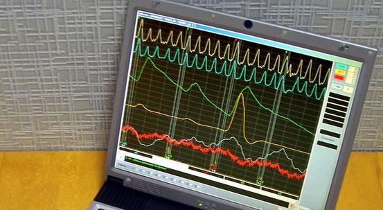 Darstellung der Messwerte eines Lügendetektors auf einem Notebook