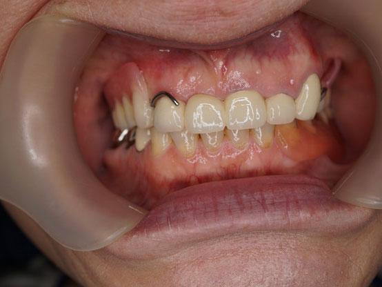 保険治療入れ歯の装着例