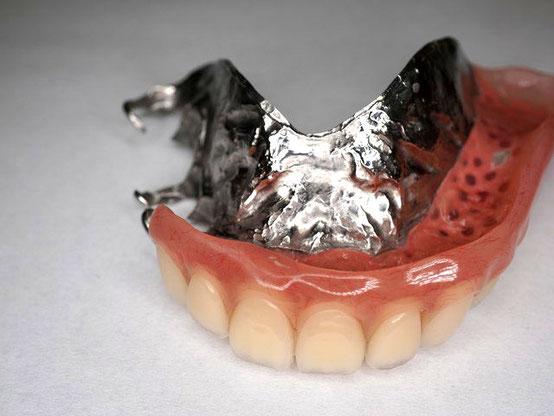 自由診療の金属床部分入れ歯