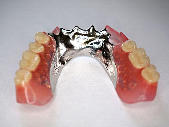 金属床とバルプラストデンチャーの部分入れ歯_後ろから
