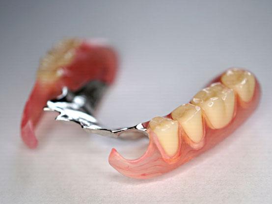金属床とバルプラストデンチャーの部分入れ歯_前から