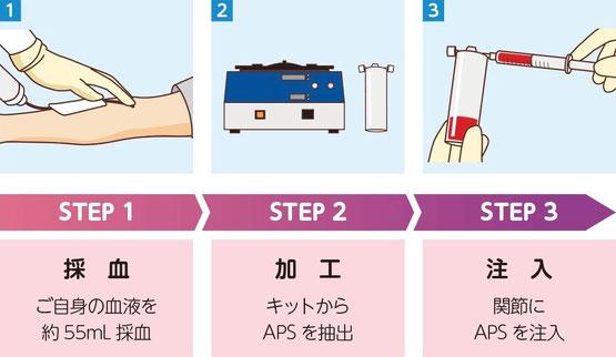 再生医療 PRP療法 APS療法 治療の流れ 名戸ヶ谷病院 整形外科 関節治療センター 千葉県 柏