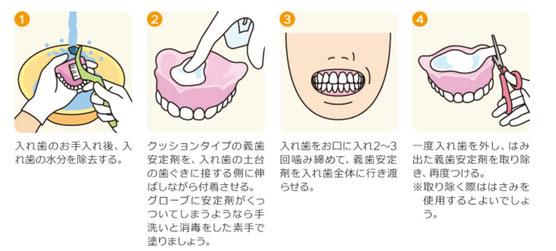 八戸 歯医者 入れ歯 上手い 調整 ノンクラスプ