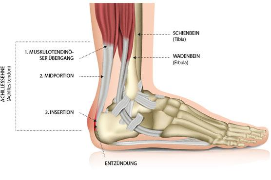 Achillessehne – Sehnenansatzschmerzen (Insertionstendinopathie) – Dr. Matthias Marquardt