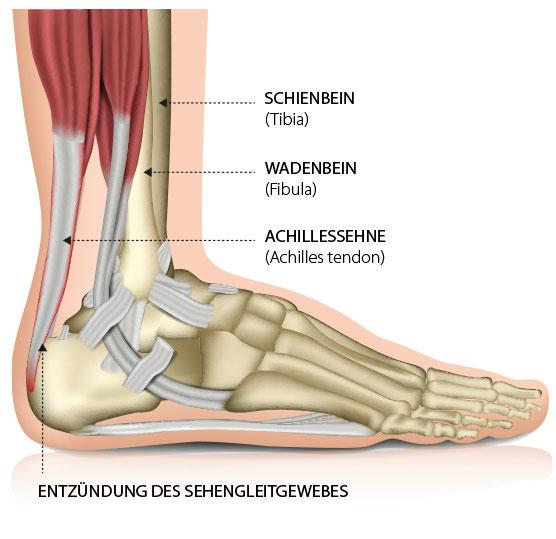 Achillessehne – Schmerzen des Sehnengleitgewebes (Paratendinopathie) – Dr. Matthias Marquardt