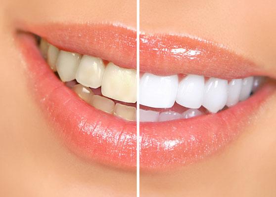 Vorher-Nachherfoto mit gelblichen und weißen Zähnen