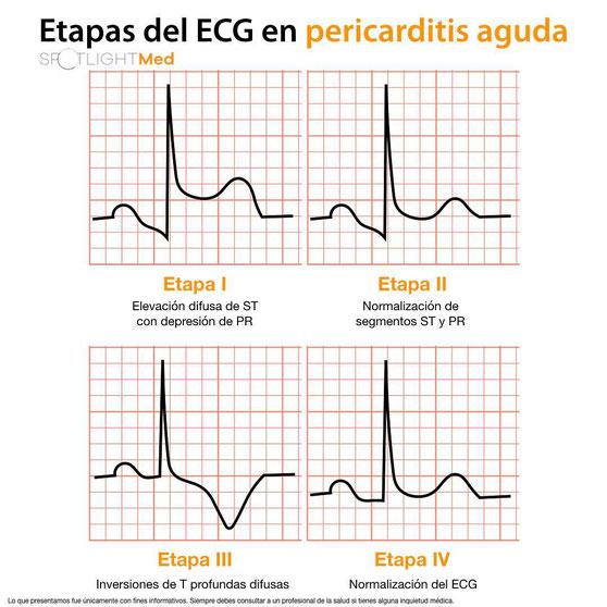 EKG Pericarditis aguda