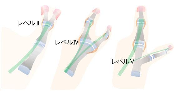 母指多指症のレベル別分類